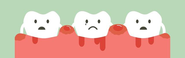 Bleeding Gums: How To Treat Them With Braces