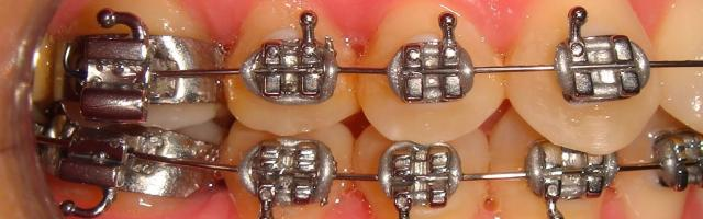 Arch Braces And How They Work