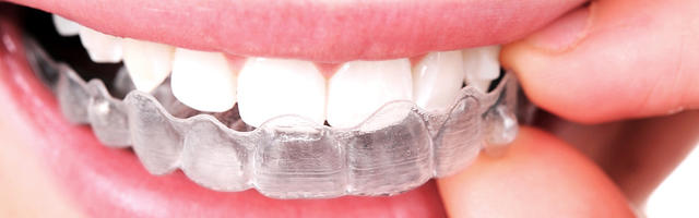 Clear Braces: Things You Should Know