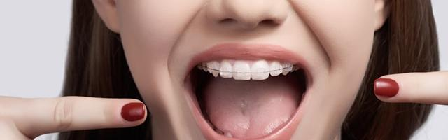 When To Start Orthodontic Treatment