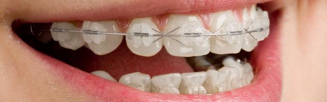 How NASA Has Influenced Orthodontics
