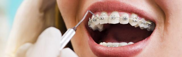 What is the difference between an orthodontist and a dentist?