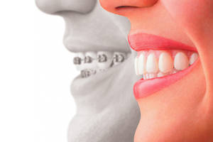 How long does it take to get braces? | Orthodontics in London