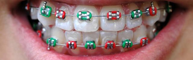 Colourful Braces Are In Fashion