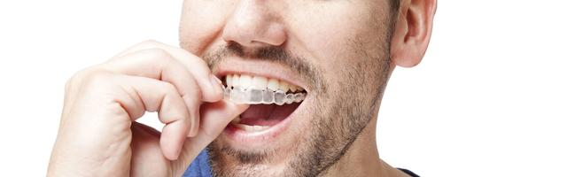 All You Need To Know About INVISALIGN® BRACES To Make An Informed Decision