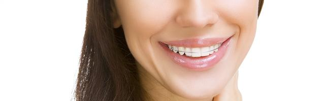 A Startling Statistic: 25% of Patients Don't Wear Their Orthodontic Retainers As Directed