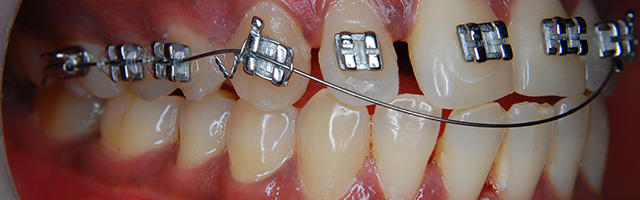 How Wisdom Teeth Can Affect Orthodontic Treatment