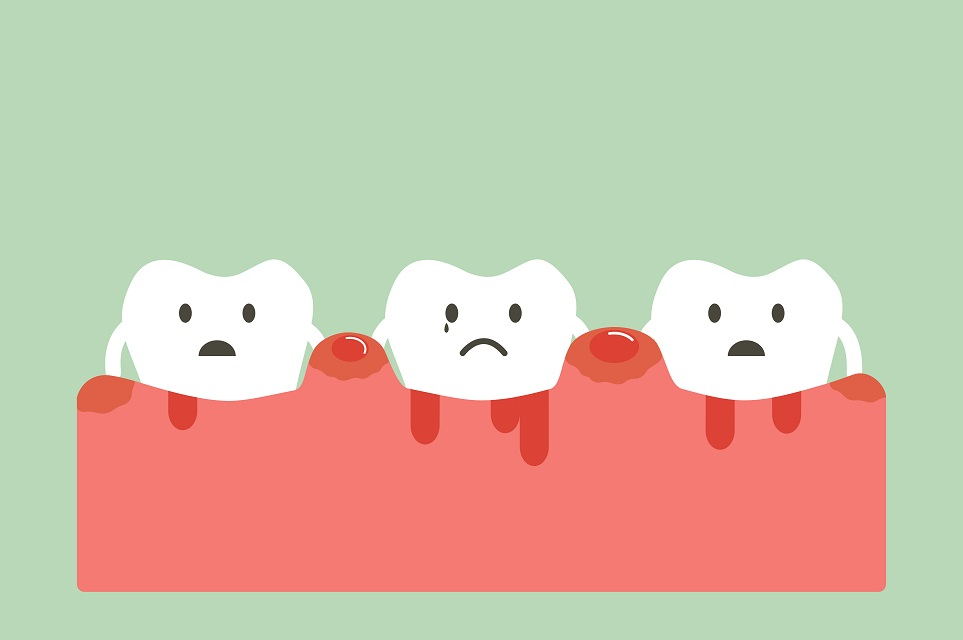 bleeding gums with braces