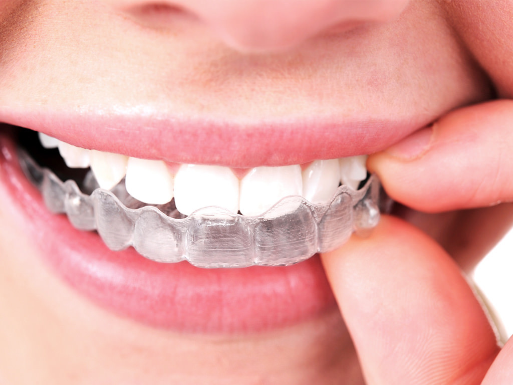 The Invisalign® Alternative