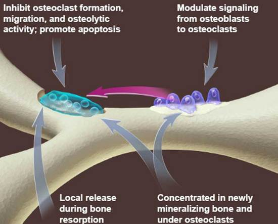 Osteoporosis And Braces | Orthodontics in London