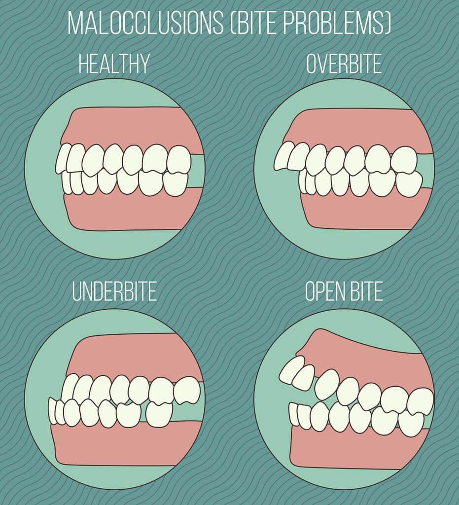 How to Treat Open Bite | Orthodontics in London