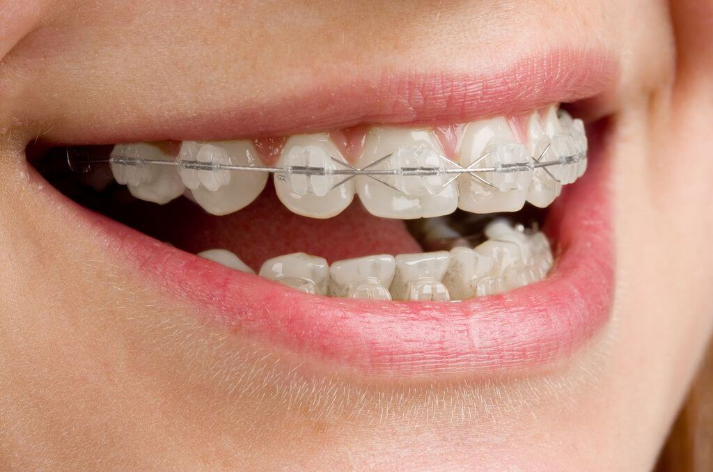 Braces: Clearing up the confusion about them