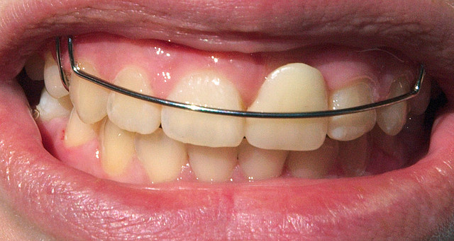 Are Retainers Important?   Orthodontics in London