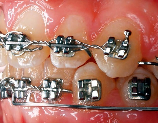 What To Do With A Loose Bracket | Orthodontics in London