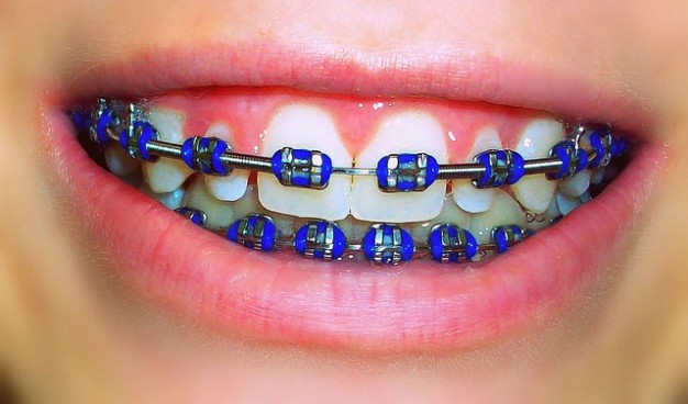 Orthodontic Alloys Braces Made
