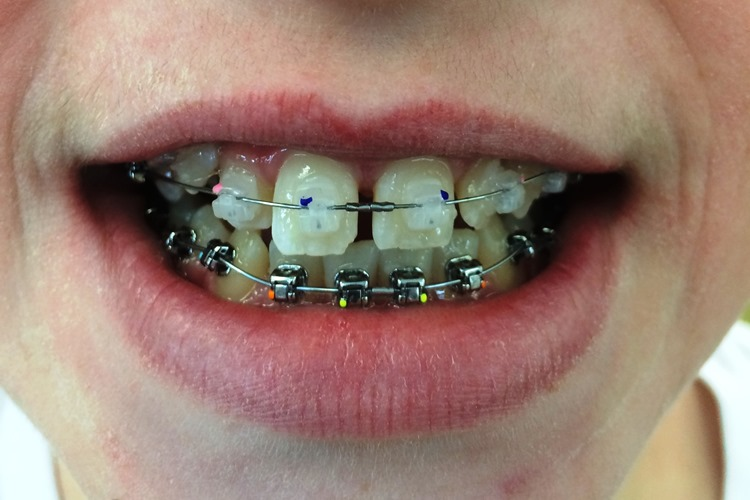 orthodontic-alloys