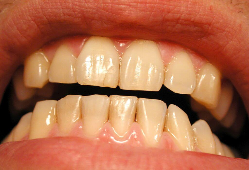 Yellow Teeth After Braces? | Orthodontics in London