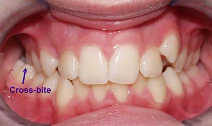 Common Problems Crossbite Orthodontics In London