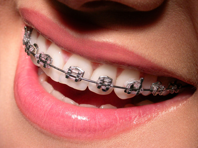 Getting Braces Removed: What Comes Next